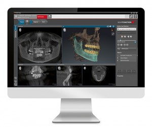 Dental Implant Placement with CT Scanner