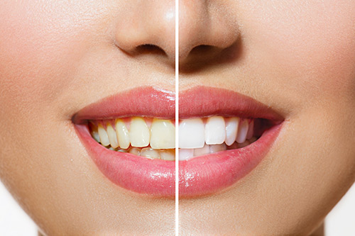 teeth-whitening-jackson-ms