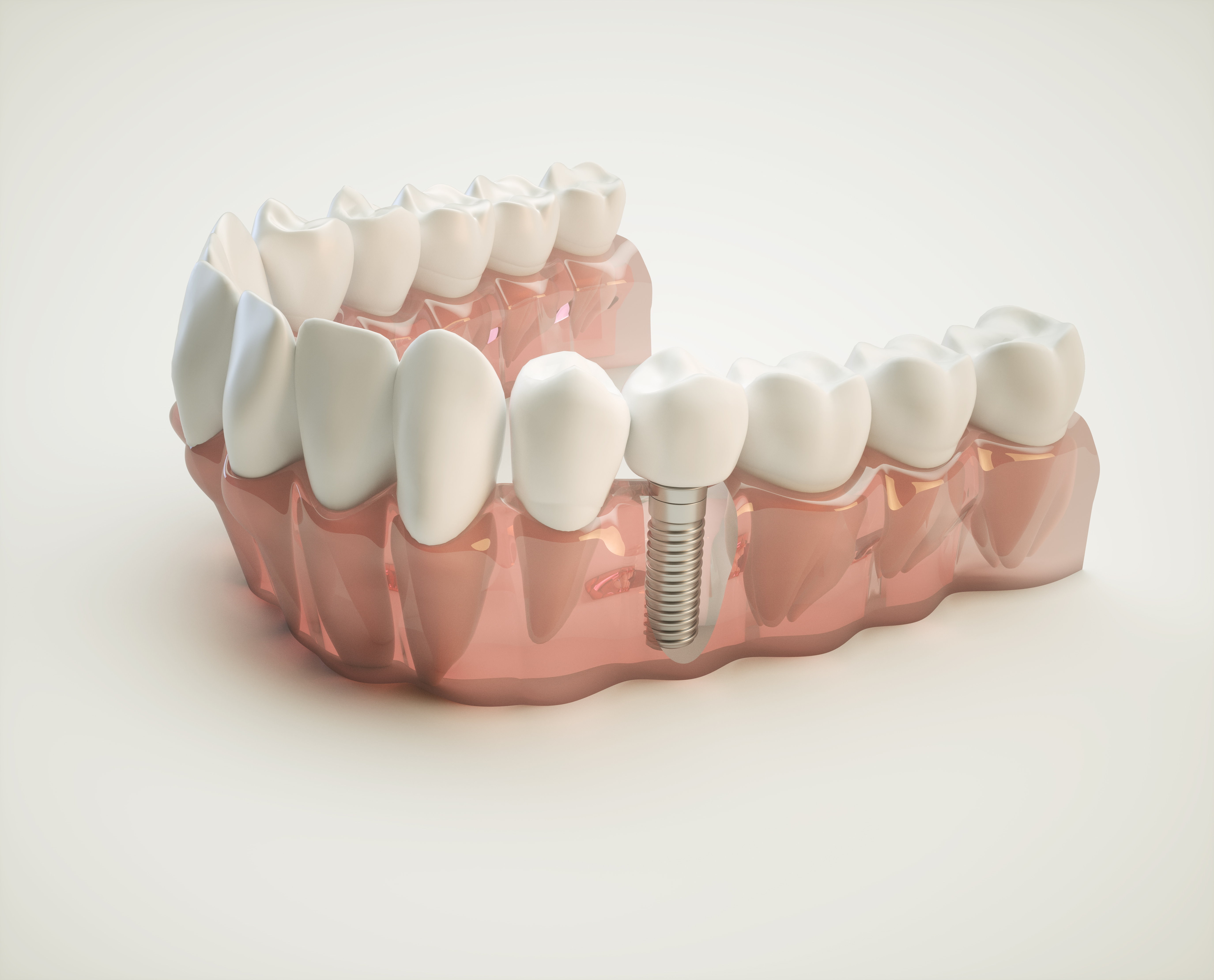 dental-implant-model